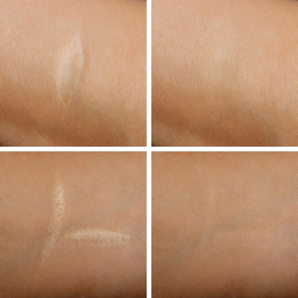 Traitement laser cicatrices