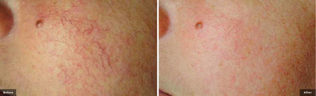 Traitement laser des rougeurs du visage
