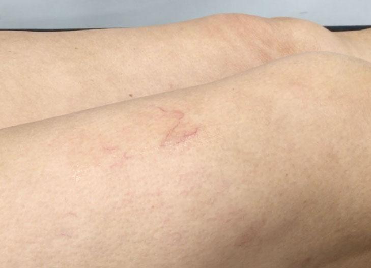 Varicosités avant traitement
